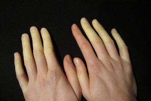 thumb_raynaud-syndrome
